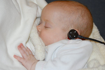 A baby receives a MEPA test as part of an infant hearing screening program